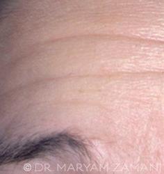Forehead_Wrinkles_Before