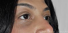 Lower Eyelid Transconjunctival Blepharoplasty
