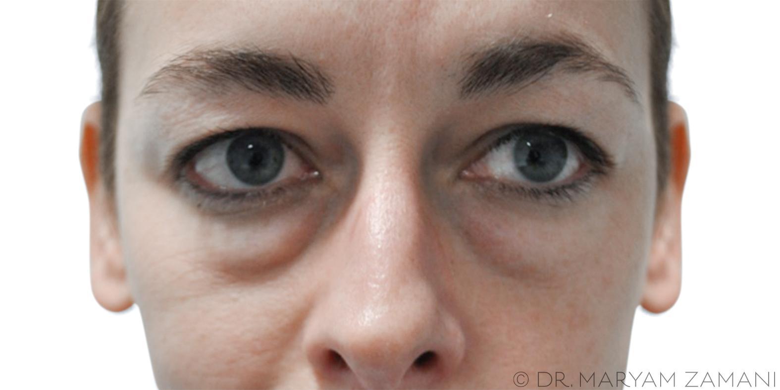 Upper And Lower Transconjunctival Blepharoplasty